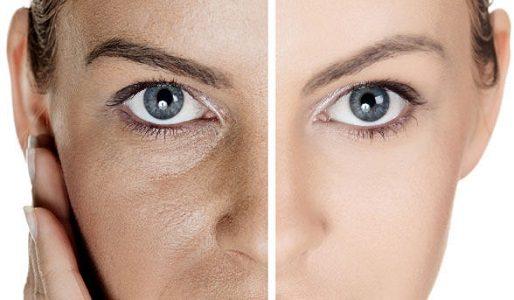 cara mengecilkan pori-pori di wajah