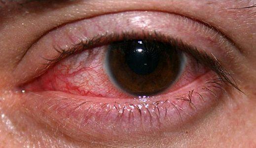 gejala sakit mata