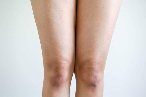 Tips Memutihkan Lutut
