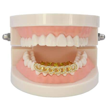 Gold Plated Teeth