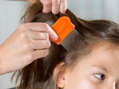 Cara Mendeteksi Kutu asal muasal dan penyebab munculnya kutu rambut