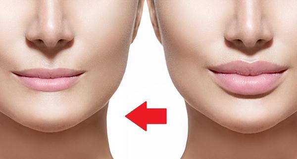 cara menipiskan bibir bawah