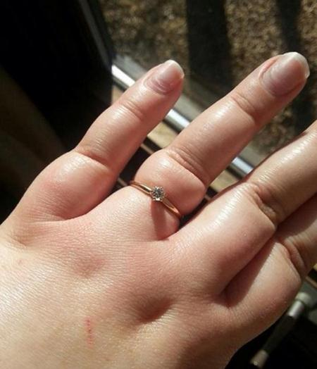 cara melepas cincin yang kekecilan