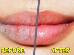 cara menghaluskan bibir