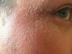 cara menghilangkan kulit wajah terkelupas dengan cepat