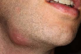 Infeksi pada wajah