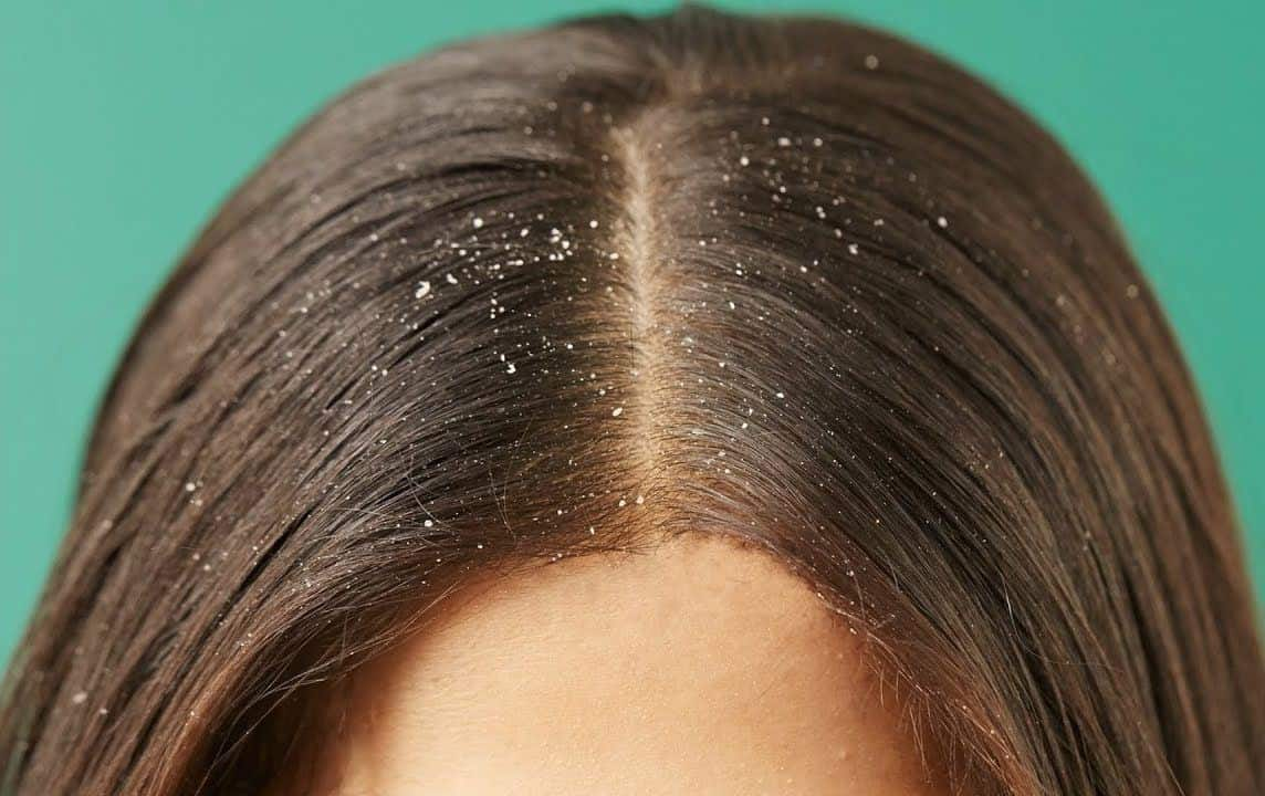 Atasi Rambut Berminyak