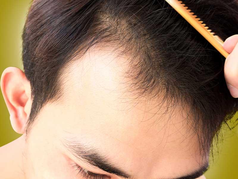 front hair loss 1