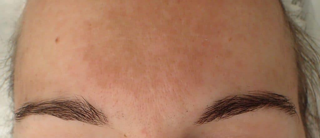 Meratakan Warna Kulit hyperpigmentation uneven skintone