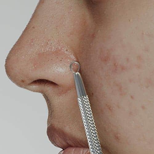 pimple comedones Extractor komedo pinset alat