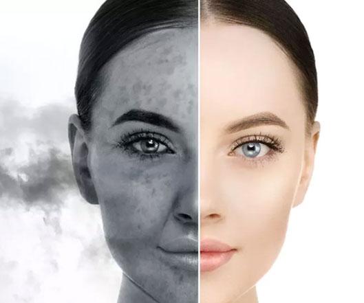 skin-polution