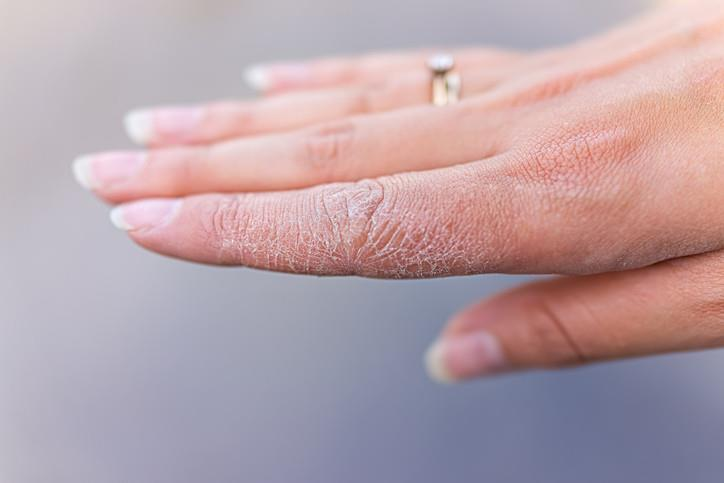 Manfaat Body Cream Oriflame_Mencegah kulit kering kembali (Copy)