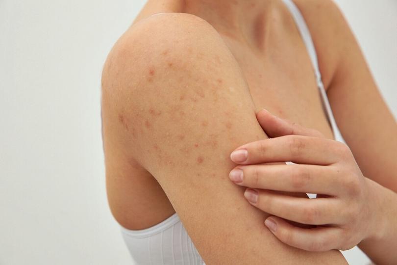 Manfaat cream theraskin_menghilangkan jerawat pada tubuh (Copy)