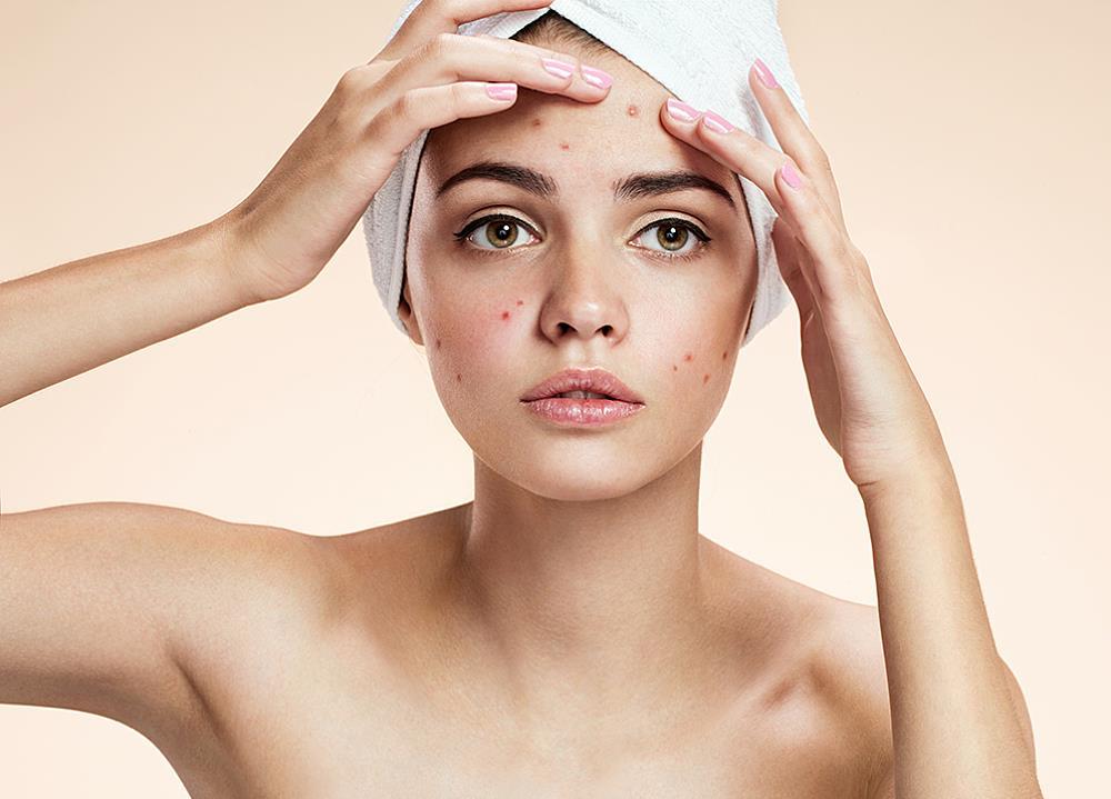 Mitos seputar perawatan kulit_wajah berjerawat