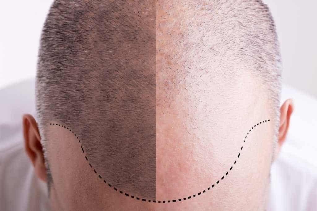 khasiat shampo metal_menyuburkan akar rambut
