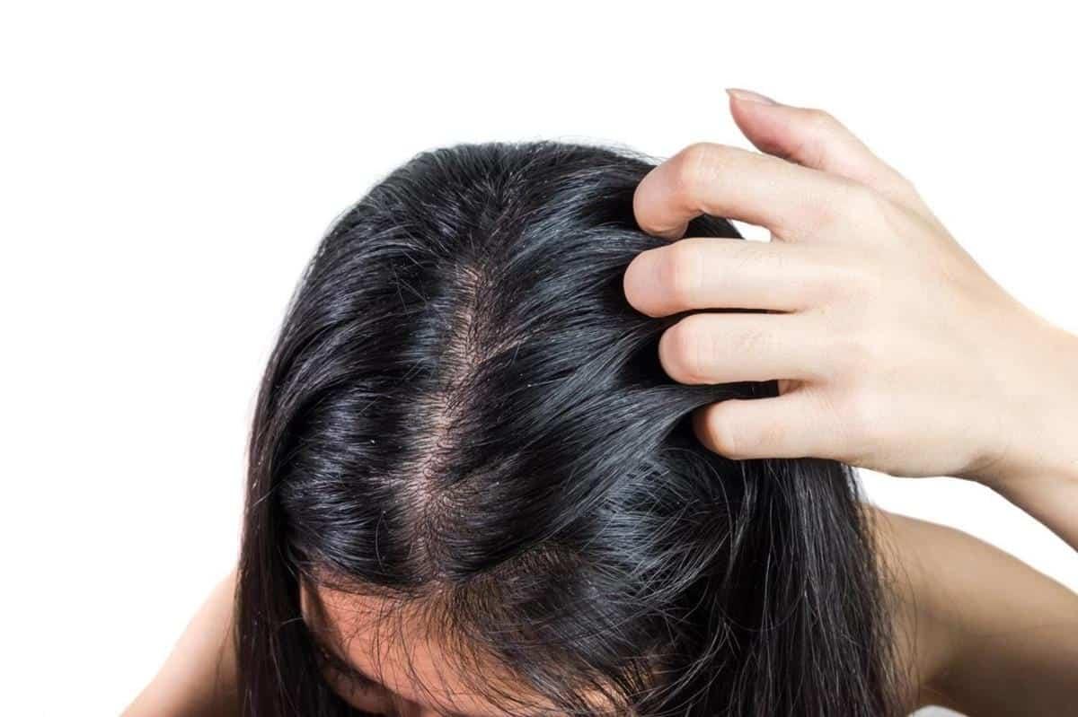 penyebab ketombe_Contact Dermatitis