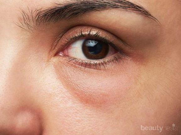 Eye Bags atau Bags under Eyes