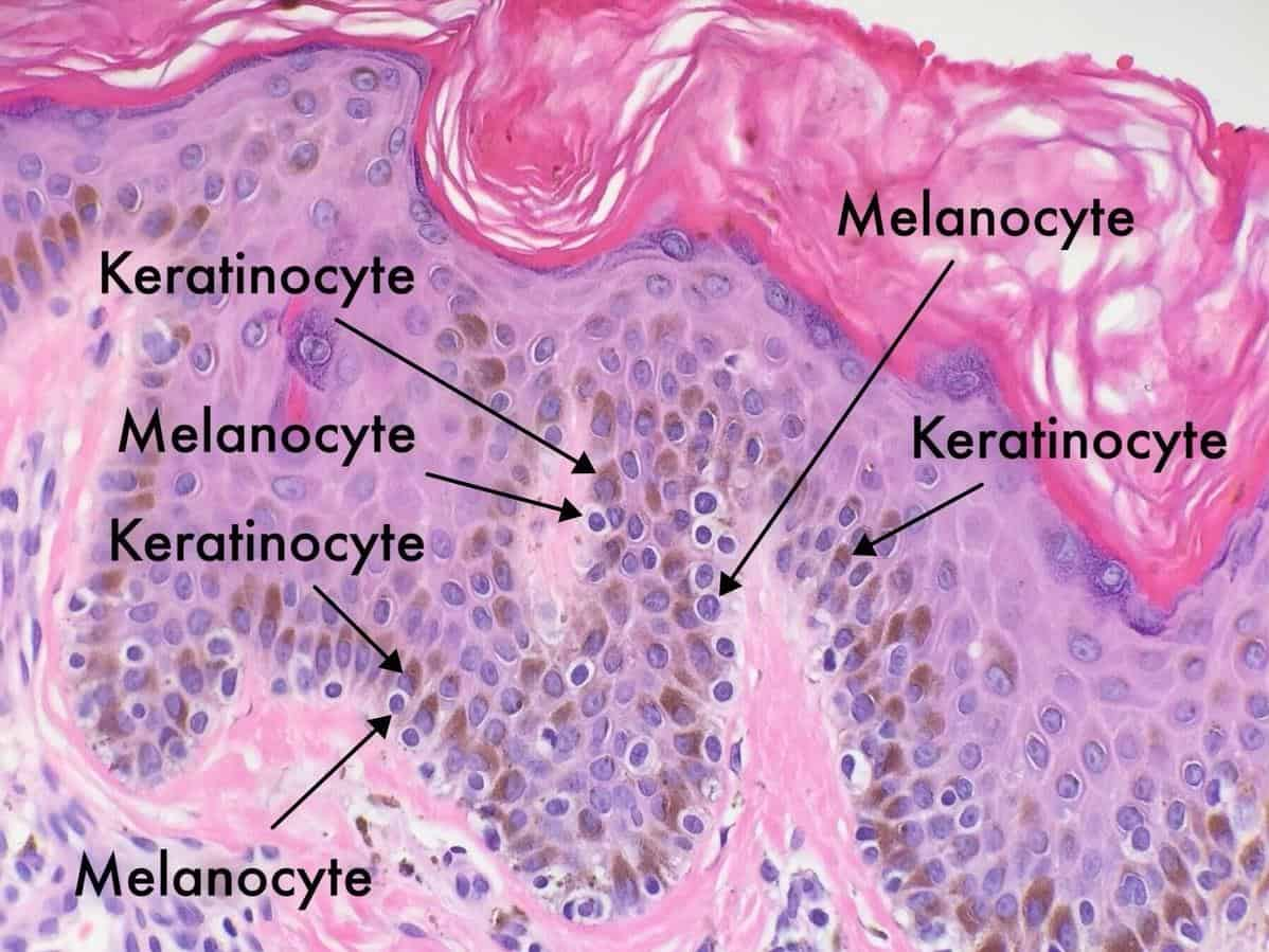 Melanosit