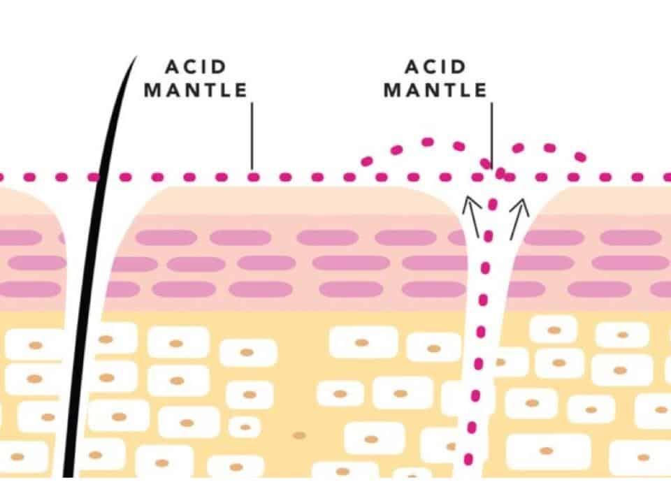 acid mantle