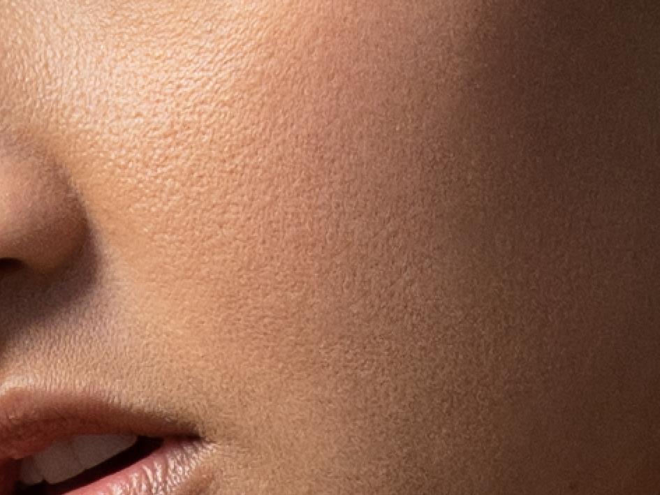 Textured Skin