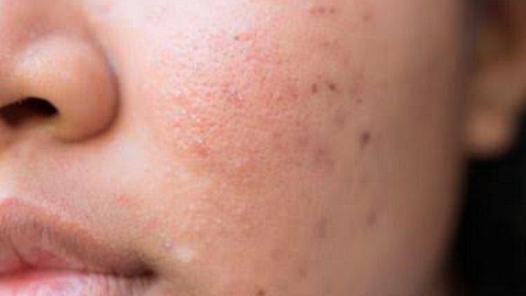 manfaat theraskin acne glow_Memudarkan Bekas Jerawat