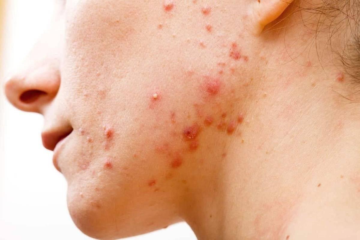 manfaat theraskin acne glow_Mengobati Jerawat Meradang