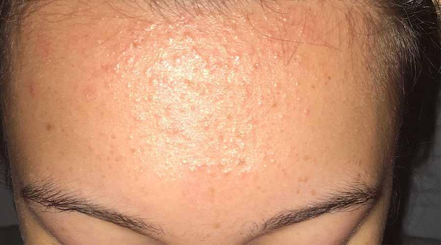 Penyebab Fungal Acne